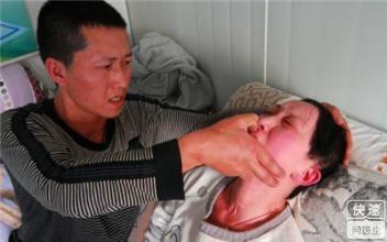 继发性癫痫病的小发作